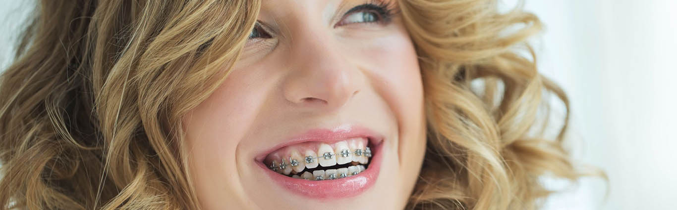 Woman in braces