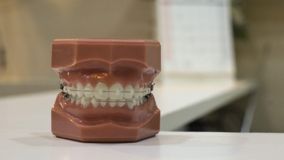 dbanie o zęby nosząc aparat ortodontyczny