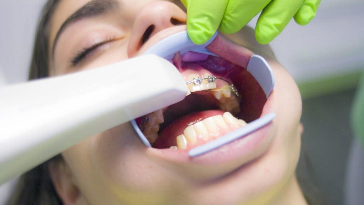 Dlaczego leczenie zębów u dzieci jest takie ważne - okładka